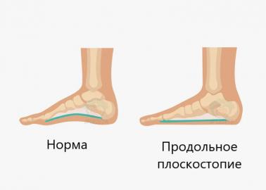 Разница между нормальной и плоской стопой